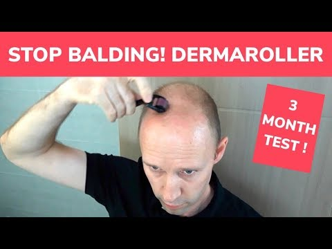 STOP BALDING! - Dermaroller 3 Month Test and Tutorial