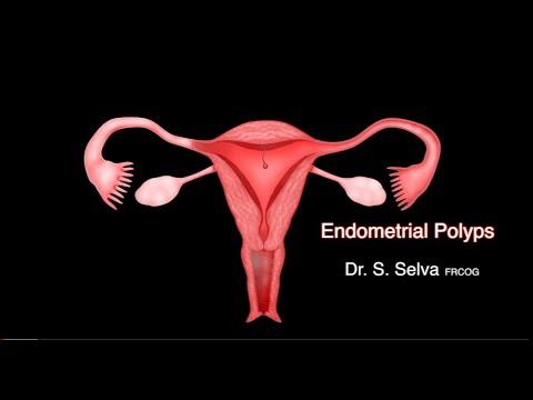 endometrial-polyps