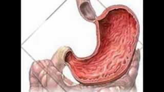 видео Язва желудка