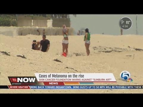 Melanoma rates double, dermatologists warn against 'sunburn art' trend