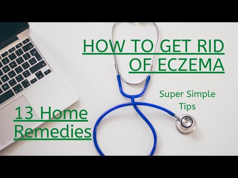 how-to-get-rid-of-eczema:-13-natural-remedies