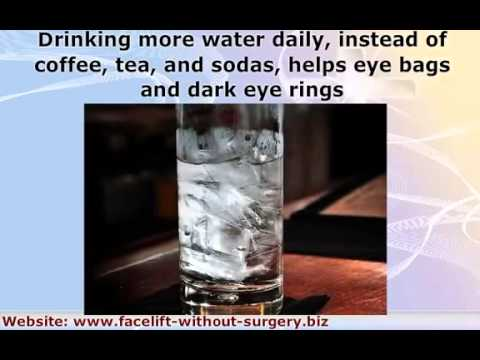 Eye Wrinkles, Dark Rings, Eye Bags  Cool Face Exercises To Reduce And Get Rid Of Them
