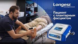 Пациент с плантарным фасциитом. Обучение методики лечения при помощи Ударно-волновой терапии.