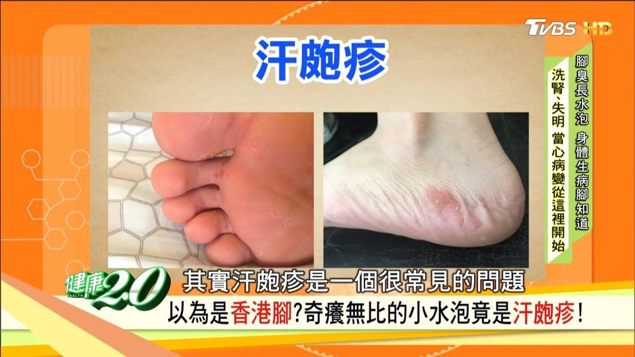 腳癢抓一抓就好?抓出傷口潰爛是糖尿病警訊!以為「香港腳」竟是汗皰疹!健康2.0 - YouTube