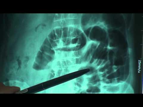 Hình ảnh x-quang của bán tắc ruột
