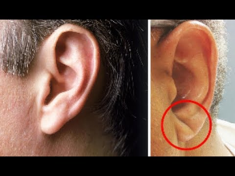 If you have this crease in your ear you could be more prone to suffering a stroke