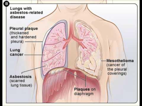 mesothelioma---asbestos-related-lung-disease