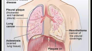 Mesothelioma - Asbestos Related Lung Disease