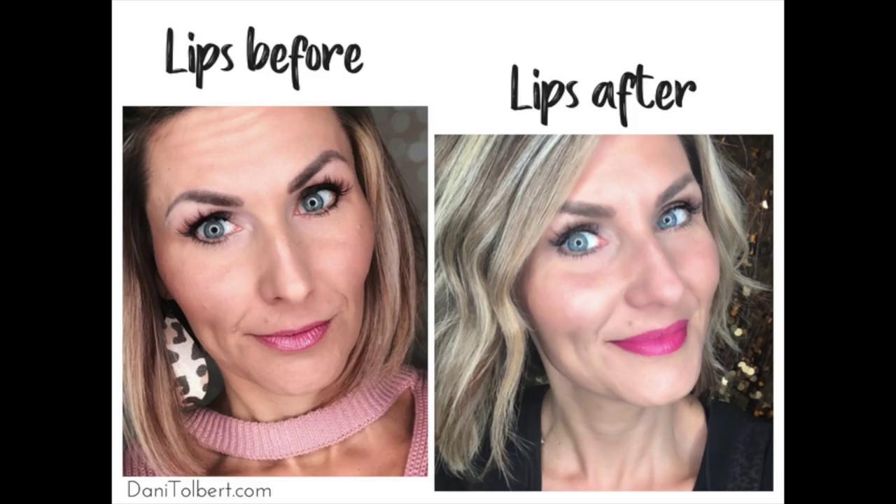 Lip Enhancement with Restylane Refyne