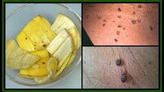 HOW TO GET RID OF SKIN TAGS | BANANA + APPLE CIDER VINEGAR GET RID OF SKIN TAGS FAST |Khichi Beauty
