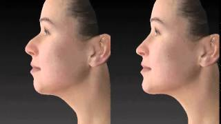 Nose and Chin Combo   Animation   ppt Thumbnail