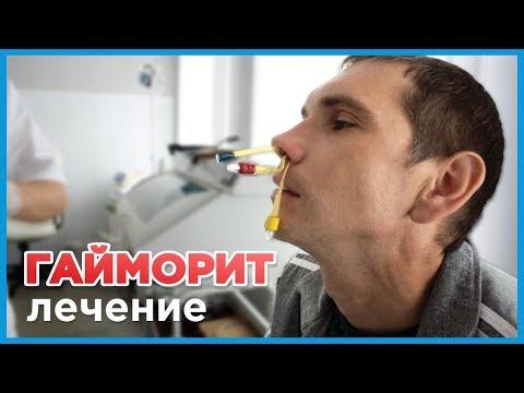 Лечение гайморита у взрослых. Введение антибиотика в пазухи носа во время ЯМИК процедуры.
