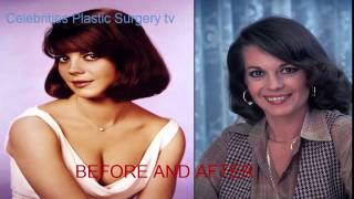 Natalie Wood Before And After