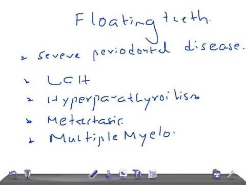 QUICK INTERNAL MEDICINE: Floating TEETH