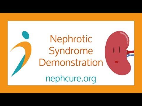 Nephrotic Syndrome Demonstration - NephCure Kidney International