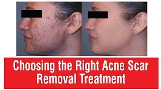 Choosing Right Acne Scar Removal Treatment | Dr. Rinky Kapoor