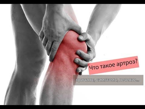 Реактивный артрит: симптомы, признаки и лечение