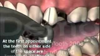 Как ставляются мосты на зубы.(Как ставляются мосты на зубы., 2012-01-27T08:56:06.000Z)