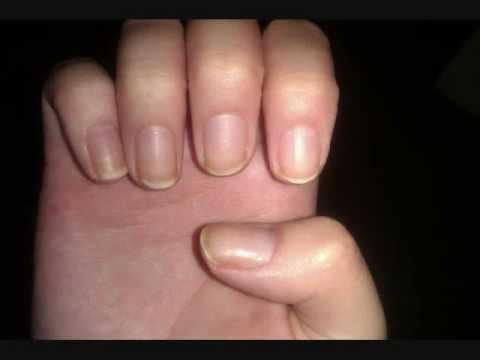 Biotin Results Nails
