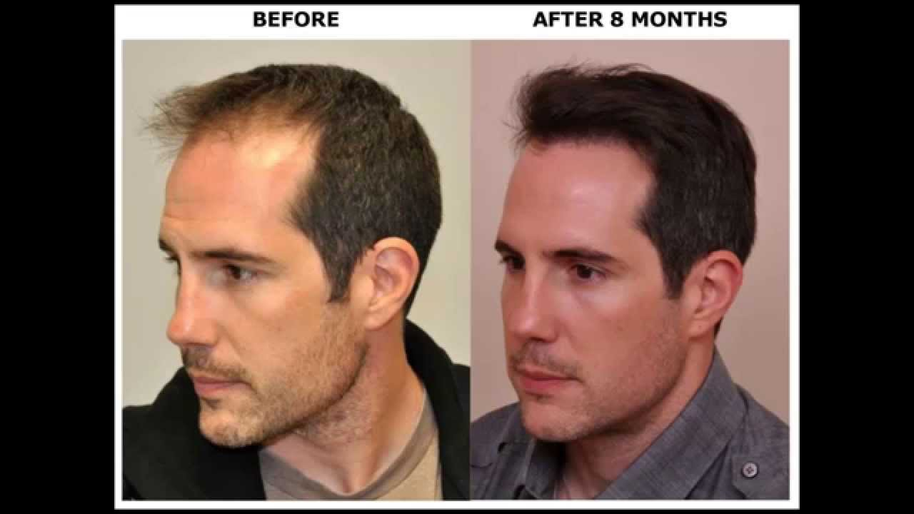 BEFORE & AFTER Hair Transplant Using ARTAS Robot for FUE ... Will Arnett Hair Transplant Before And After