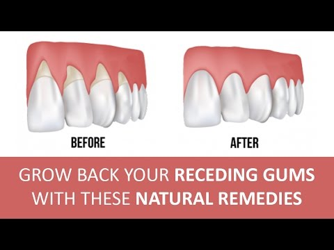 5 Effective Home Remedies for Gum Disease