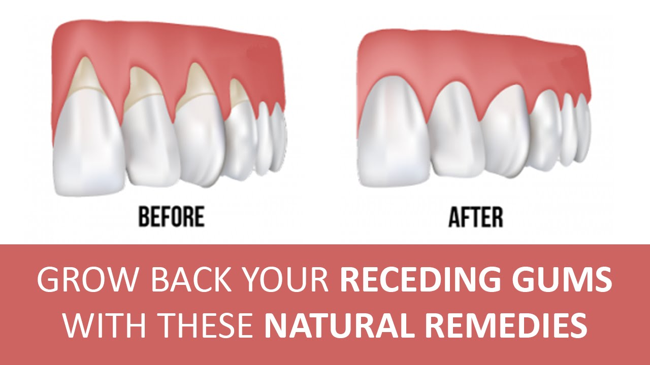 Natural Remedies For Gum Disease And Loose Teeth