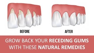 Effective Home Reme Gum Disease