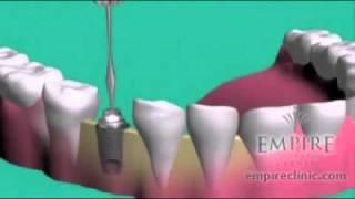 Zahnimplantate In Ungarn