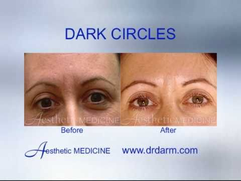 Before And After Skin Problems Scars Dark Circles