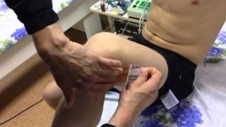Дзюдо , наклейка тейпа ( болезнь Шлаттера )(, 2015-09-25T19:22:11.000Z)