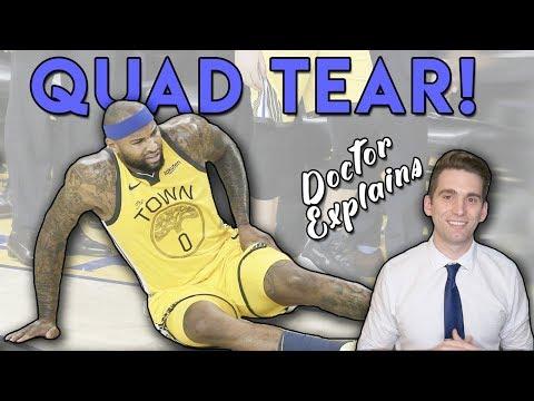 Doctor explains Demarcus Cousins' Quad Tear
