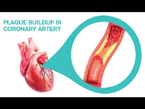 coronary-arteries-cleanse-with-only-3-ingredients