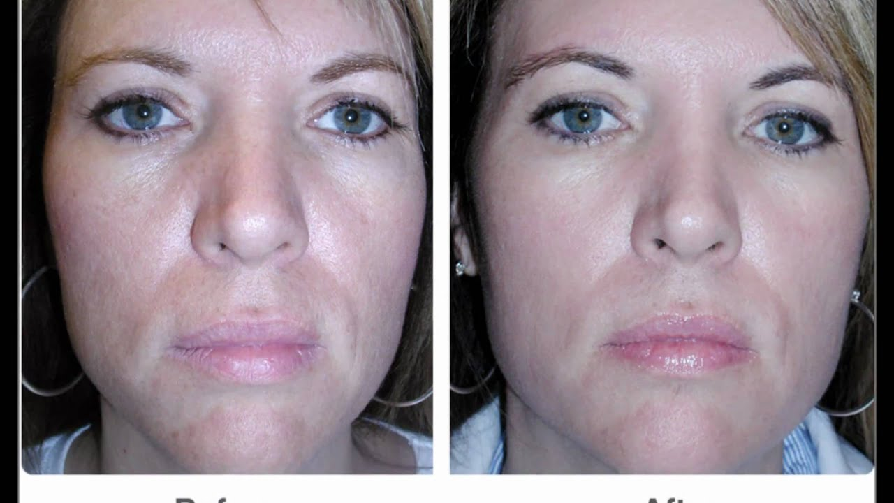 Face Wrinkles - Before and After Pictures - YouTube