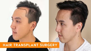 Download lagu Hair Transplant Surgery   Best in Beauty