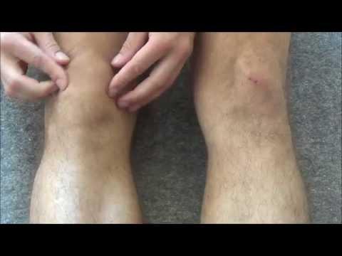 Боли в колене - причины и лечение