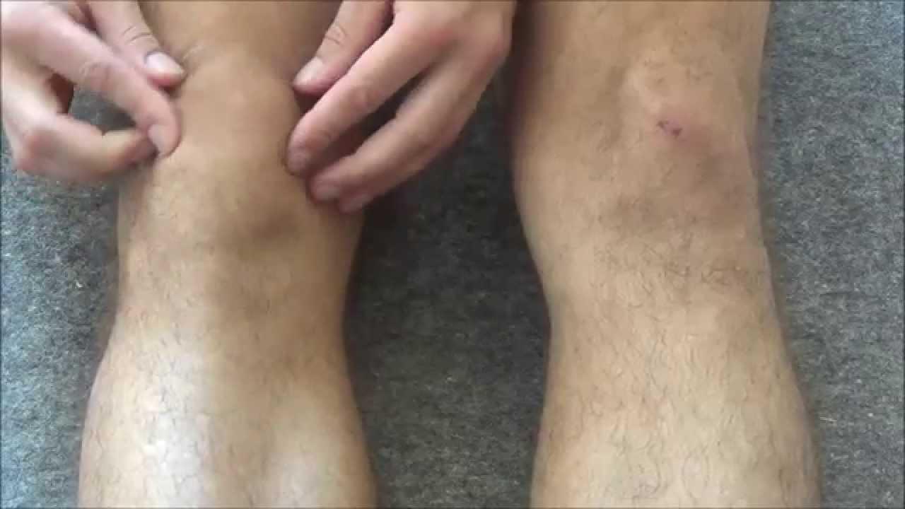 замена коленной чашечки