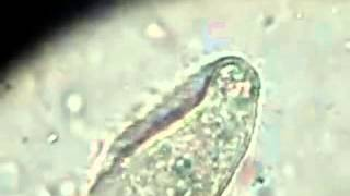 [Parasitology] Balantidium coli trophozoites - Movement in Wet Mount Preparation