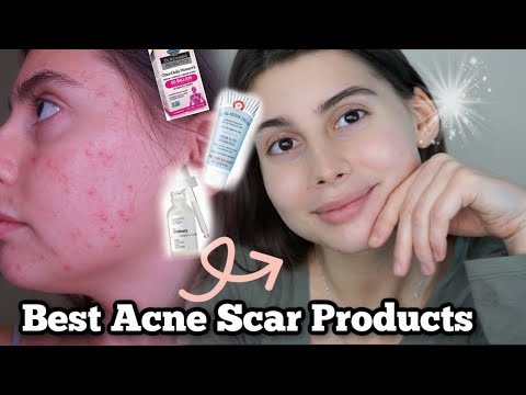 BEST SKINCARE ROUTINE FOR ACNE SCAR PRONE / DRY SENSITIVE SKIN DURING WINTER!!!!