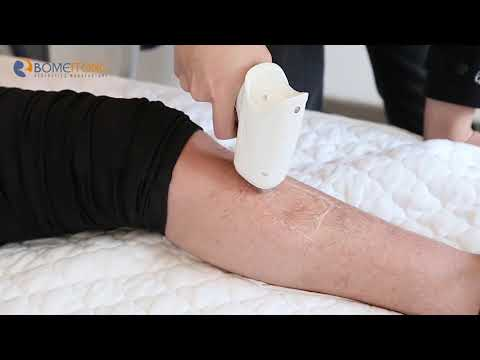 Good Good Results Of Hair Removal Laser Device Bomeitong Beauty Machine BM13
