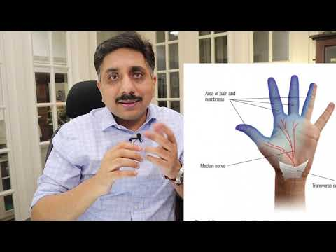 Homeopathic Remedies for Carpal Tunnel Syndrome -Treatment & Medicines