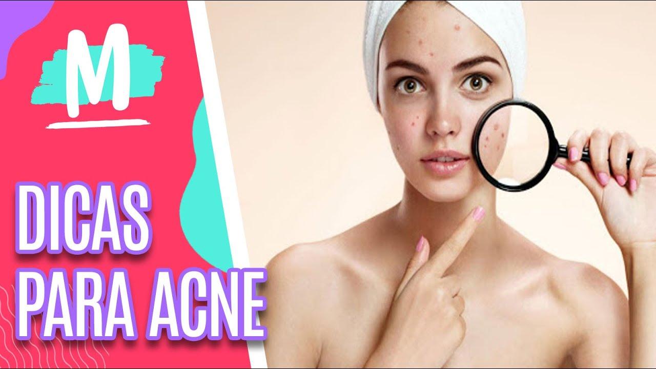 Dicas de como evitar a acne - Mulheres (24/06/2021)