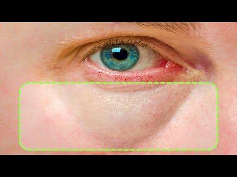 Как вылечить мешки под глазами