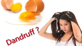 Simple Treatment For Dandruff with Eggs