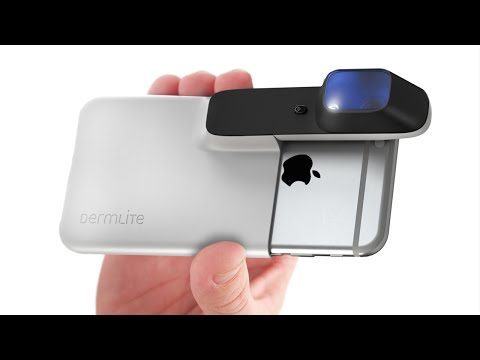 5 Smartphone Gadgets You NEED To Get #12