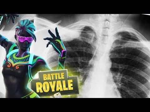 Breaking Bones & Taking Names (Fortnite)