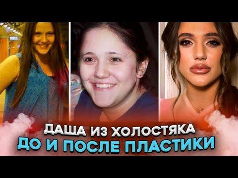 """Победительница шоу """"Холостяк 10"""" до пластики. Такую Дашу Ульянову вы не знали! стб украина"""