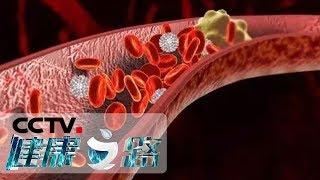 《健康之路》 20190616 血管病了真要命(四)  CCTV科教
