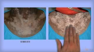Vitix Gel for Vitiligo
