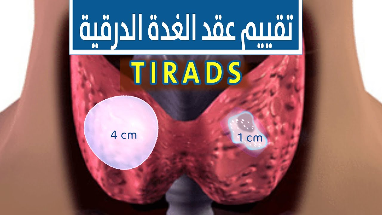 نسب الاشتباه وتصنيف عقد الغدة الدرقية بالسونار التيراد Tirads Youtube