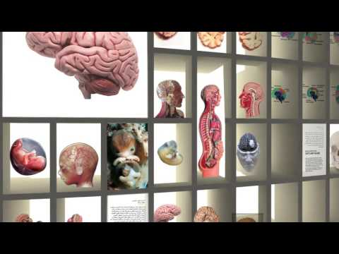 Samii Brain Museum in Tehran